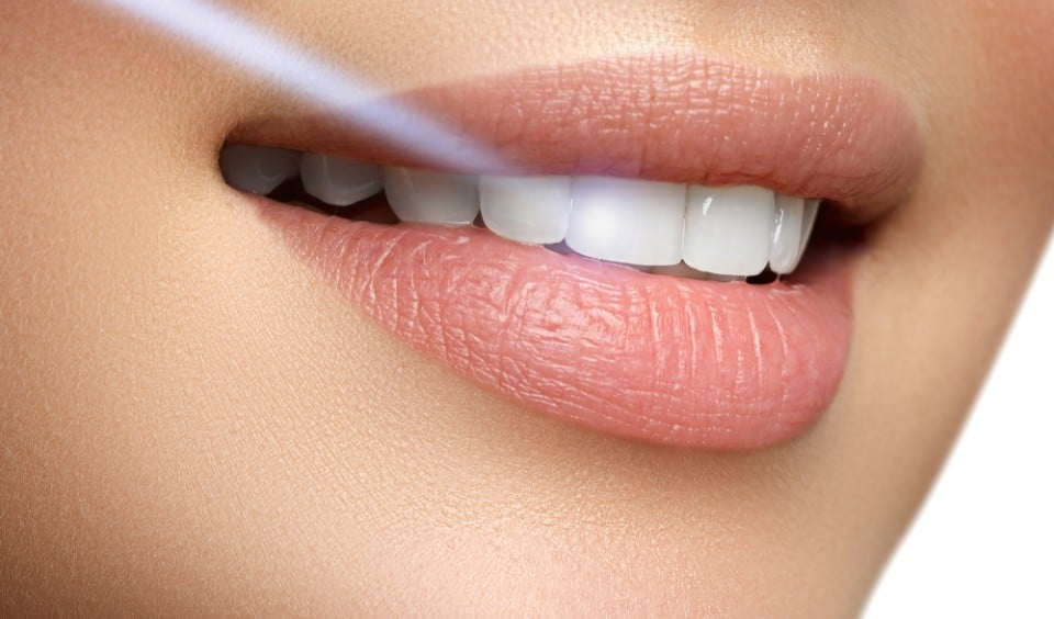 Introducing-Laser-Dental-Procedures