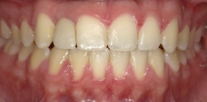 dental-implants-patient-after
