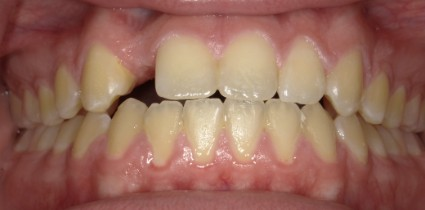 dental-implants-patient-before