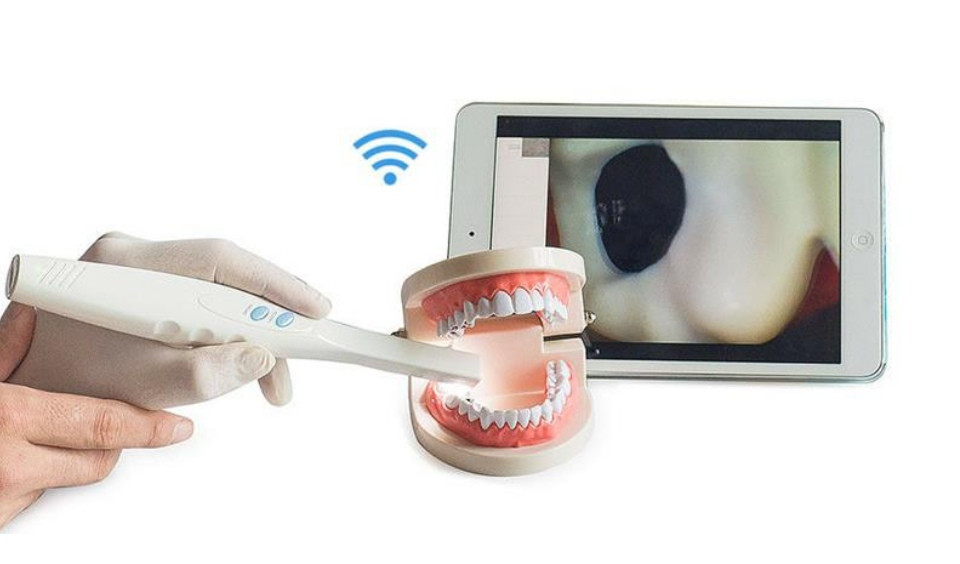 oral-camera-technology